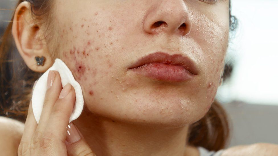 Step by step instructions to Choose The Right Type Of Acne Treatments