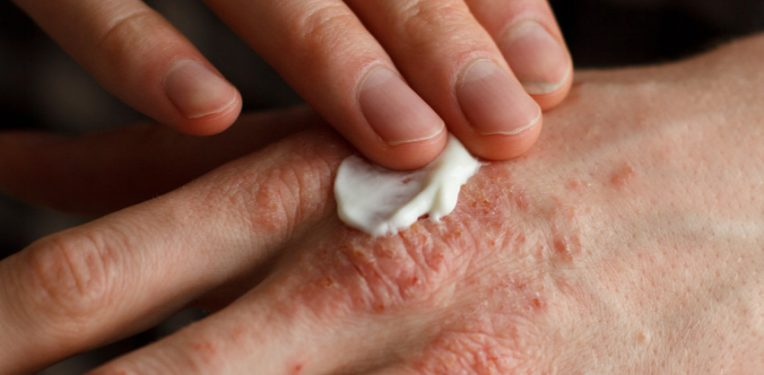 Sorts of Treatments for Psoriasis